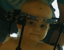 Miracle of the Day: Surgeons Reattached a Toddler's Head After a Car Crash Causes Internal Decapitation