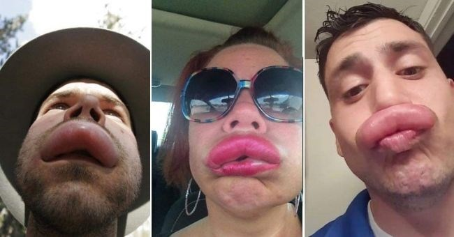 pictures of people's swollen lips from bee stings - thumbnail pic shows three people with big lips from bee stings