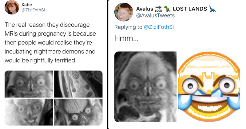 Funny twitter thread reveals the scary nature of fetal MRIs, pregnancy, WTF, cringe, medical
