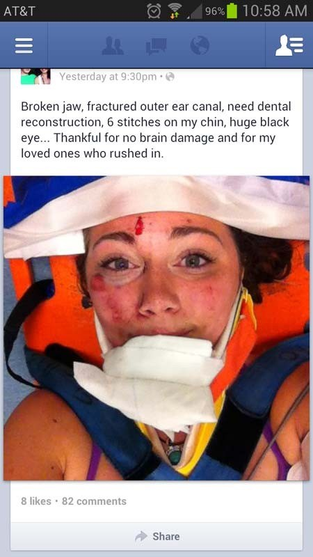 Totally 15 ridiculous selfies ever taken - cover selfie of a woman strapped rescue board gurney who posted on facebook that she broke her jaw and ear canal, and needs stitches on her chin, looks a bit in shock.