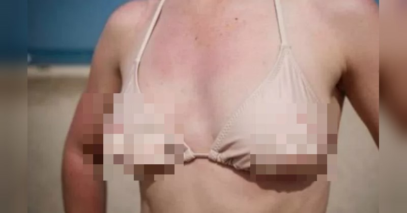 swimsuit that looks like naked breasts - cover photo for a list of awful bathing suits