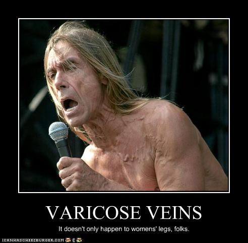VARICOSE VEINS It doesn't only happen to womens' legs, folks.