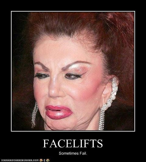 FACELIFTS Sometimes Fail.