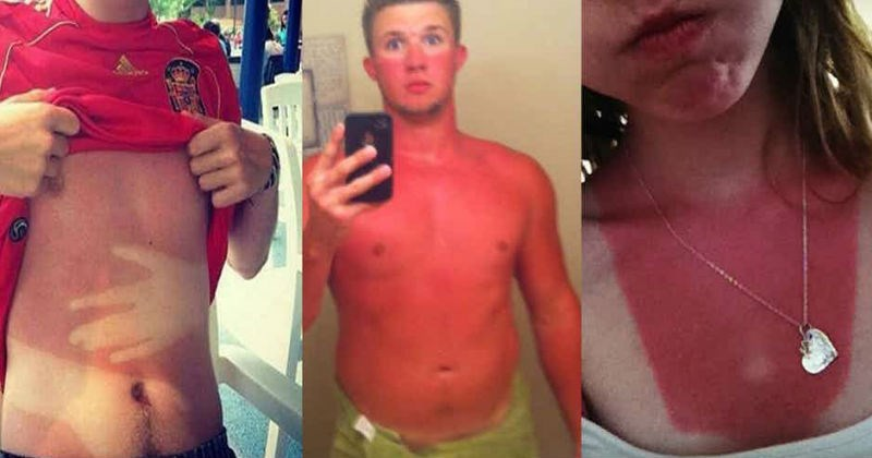 18 people who are walking around with terrible sunburns.