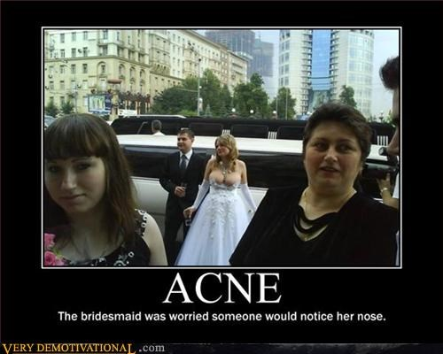 acne boobs brides demotivational limo Mean People wedding - 3390272768
