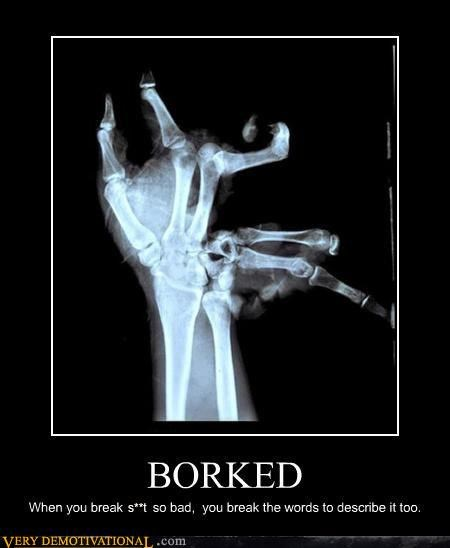 bones borked broken Hall of Fame hand ouch Terrifying x ray - 3878624512
