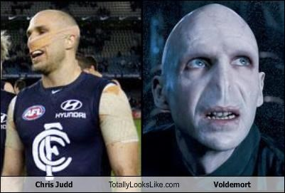 Chris Judd,Lord Voldemort,nose,sports