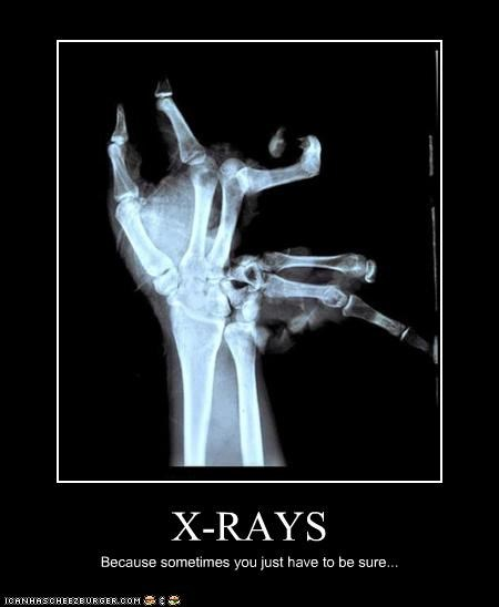 X-RAYS Because sometimes you just have to be sure...