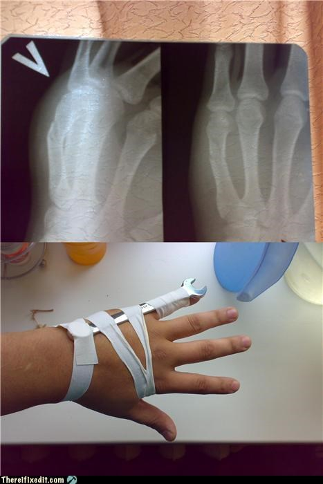 broken bones,hospital,splint,wrench