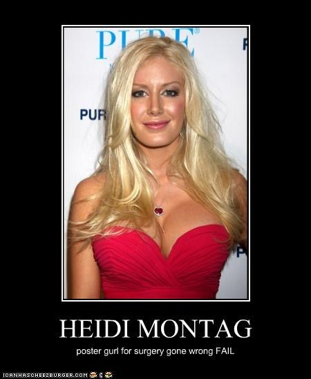HEIDI MONTAG poster gurl for surgery gone wrong FAIL