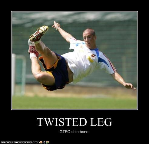 TWISTED LEG GTFO shin bone.