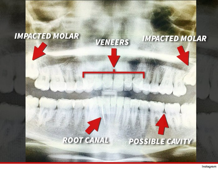 wisdom teeth instagram miley cyrus dental - 433157