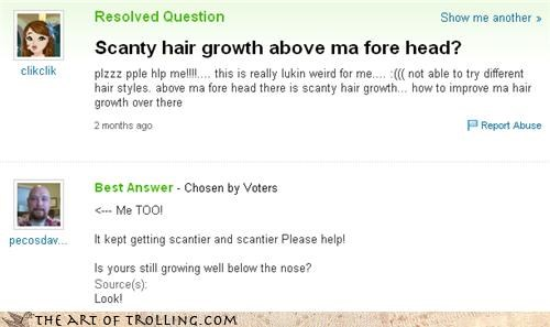 alopecia,bald,girls,hair,nose,scant,Yahoo Answer Fails