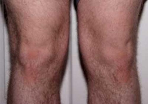 bens-knees,Pareidolia,slow news day