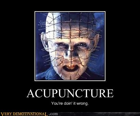 ACUPUNCTURE You're doin' it wrong.