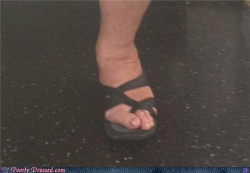 foot hammertoe sandals