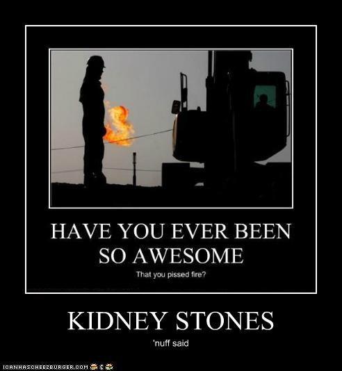 KIDNEY STONES 'nuff said