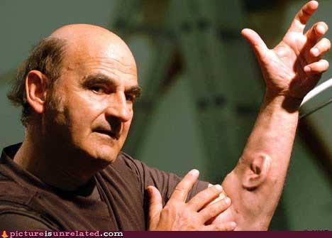 arm,ear,ed asner,wtf