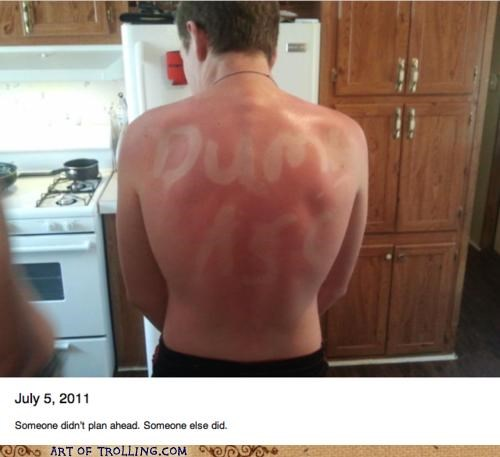 dumb FAIL IRL sunburn - 4953755648