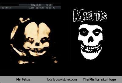 fetus misfits - 5000062720