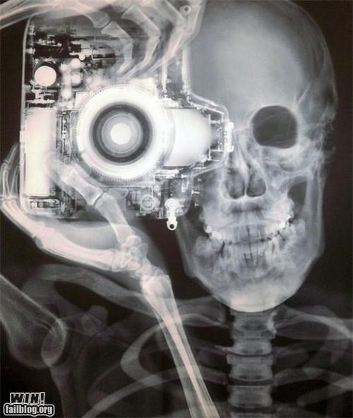 camera classic photography skeleton x ray - 5012738560