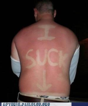 beach passed out sunburn - 5054932992