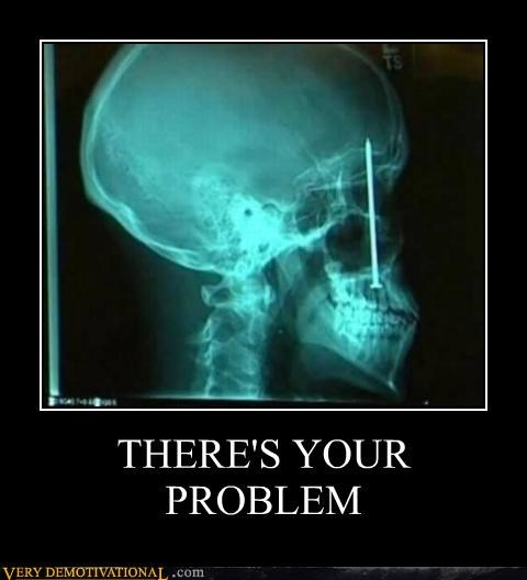 head nail ouch problem Terrifying x ray - 5061095168
