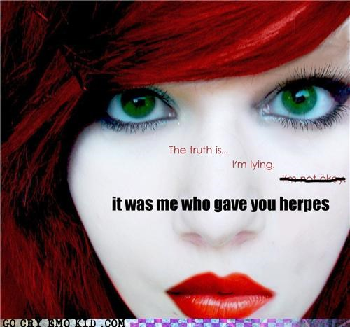 emolulz,herpes,lying,STD