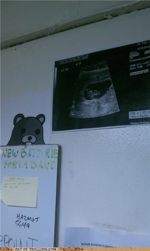 baby IRL pedobear ultrasound - 5203660544