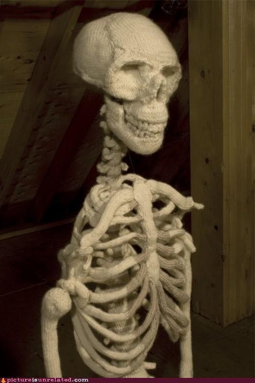 crazy osteoporosis skeleton wtf yarn - 5215836672