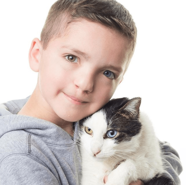 boy two colored bullied rare eyes medical condition Cats - 5236485