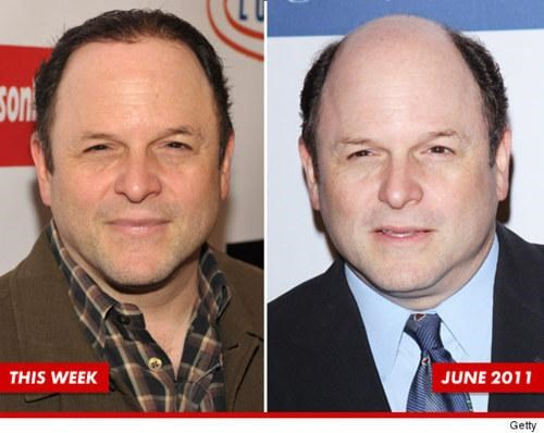 jason alexander,Then And Now