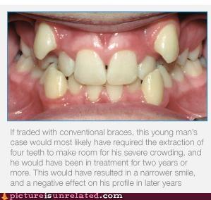alien best of week Predator teeth wtf - 5366521600