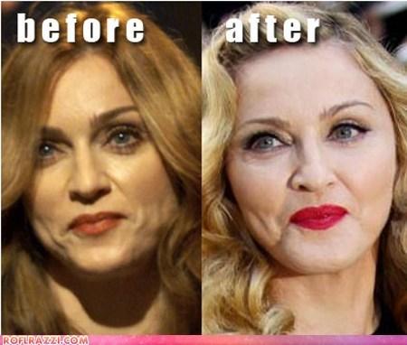 celeb,funny,Madonna,Music,plastic surgery