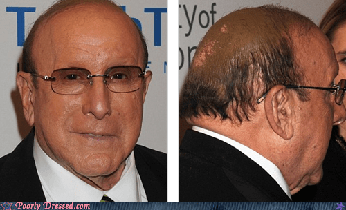 balding,balding with dignity,not fooling anyone