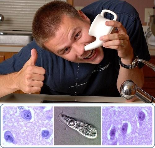 brain-eating parasite Louisiana Naegleria fowleri Neti Pot one more thing - 5576798464