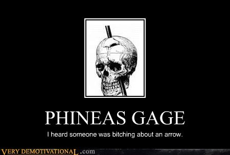 arrow,head,hilarious,knee,phineas gage,skyirm,spike