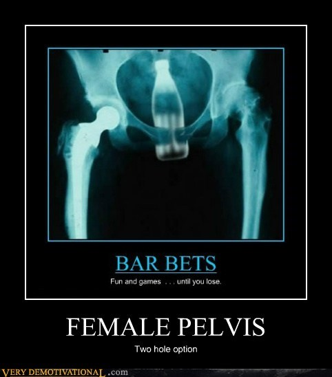 coke female pelvis Terrifying x ray