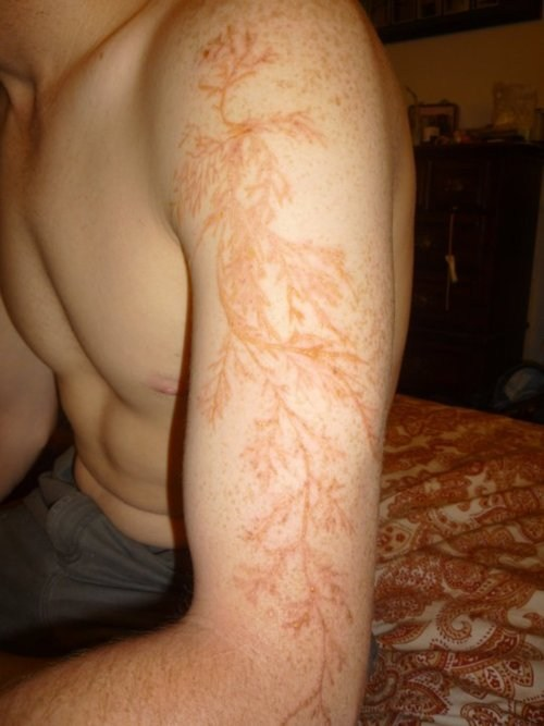 How About That,Lichtenberg Figure,Lightning Flower