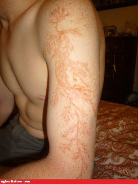 g rated,lichtenberg scar,lightning,natures-tattoo-artist,struck by lightning,Ugliest Tattoos