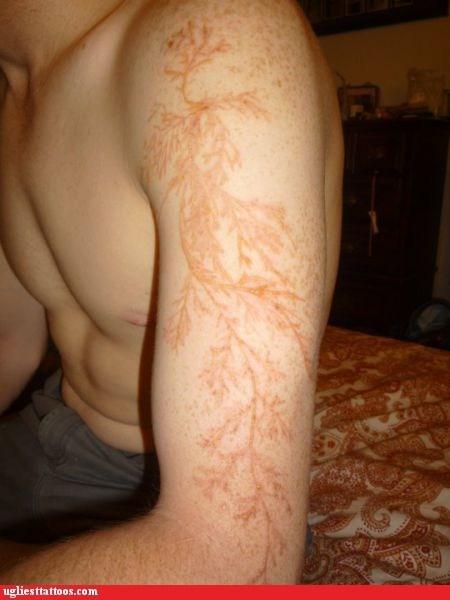 g rated lichtenberg scar lightning natures-tattoo-artist struck by lightning Ugliest Tattoos - 5933523456