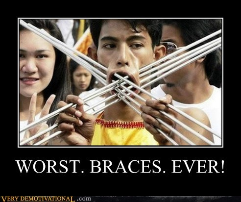 braces,eww,Terrifying,wtf