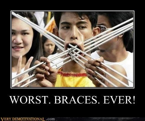 braces eww Terrifying wtf - 6017935104
