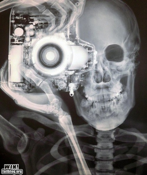 design photography skeleton x ray - 6045339136