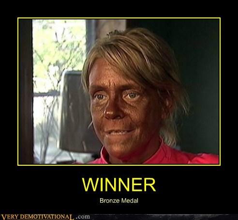 bronze hilarious medal tanning winner - 6201298944