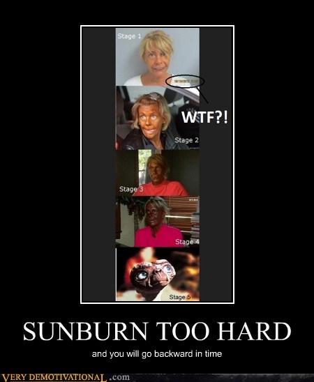 ET eww sunburn tanning Terrifying - 6206288128