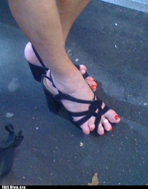 fail nation feet g rated sandals smashed toes - 6227723008