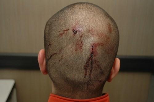 George Zimmerman Trayvon Martin - 6240344320