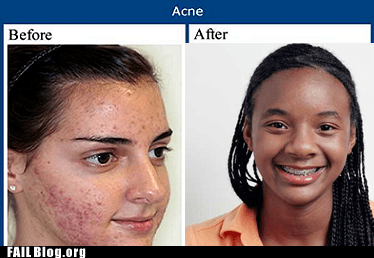 acne,Before And After,race