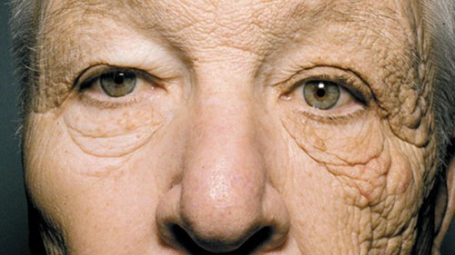 case for sunscreen,NEJM,sun damage